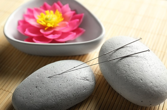 Acupuncture Therapies